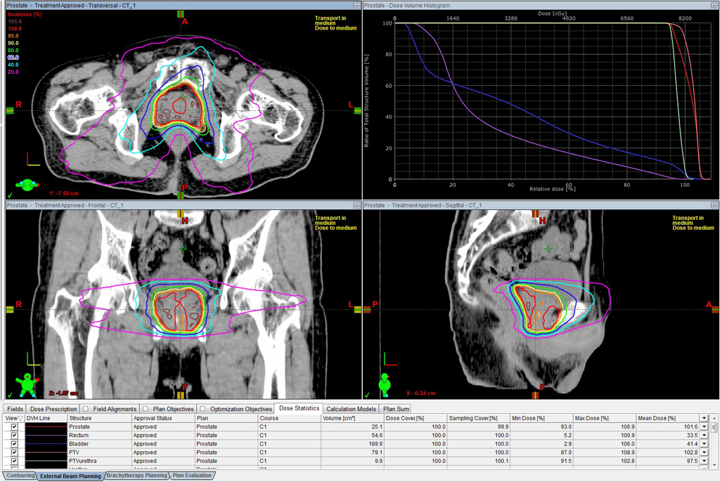 癌 治療 前立腺 放射線 前立腺がんの小線源治療|放射線治療|がん研有明病院